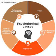 Erectile Dysfunction Psychological Factors
